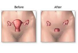 hysterectomy_before_and_after