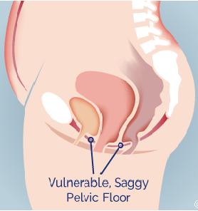 pierdere în greutate prolaps uterin)